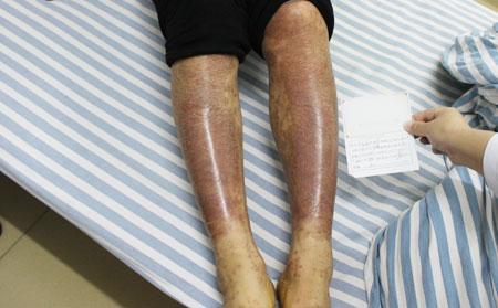关节炎牛皮癣该怎么快速治疗
